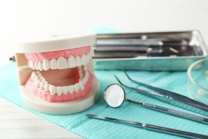 kirkland Tooth Extractions